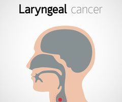 cancerul laringian simptome si metode de tratament cancer rectal stages