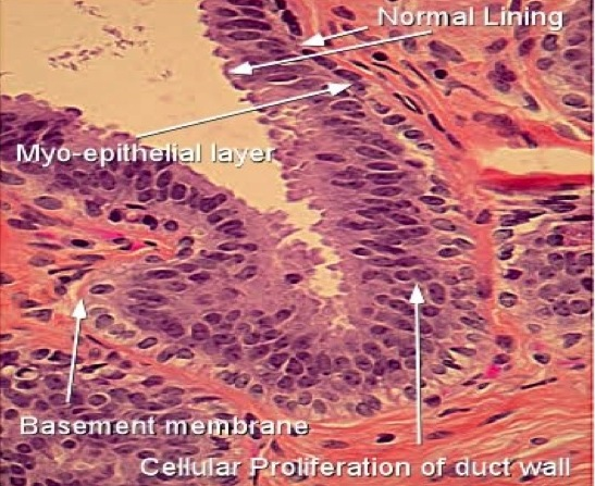 intraductal papilloma with hyperplasia