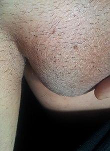 papilloma gastrico papilloma virus cancro seno