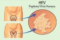papillomavirus medical definition