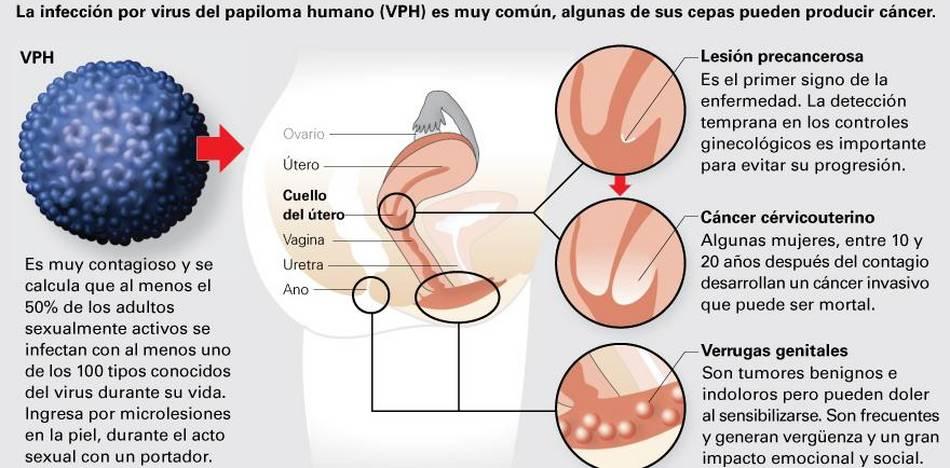 bacterii spital papilloma virus operazione