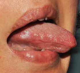 HPV vírus, HPV fertőzés, HPV terjedése   HPVdoktor Papillomavirus lingua
