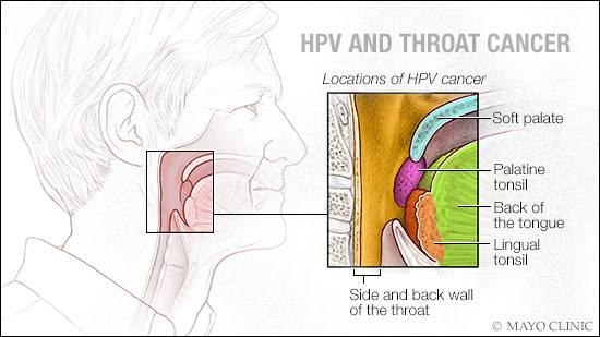 can hpv cause thyroid cancer papilloma laryngeal cancer