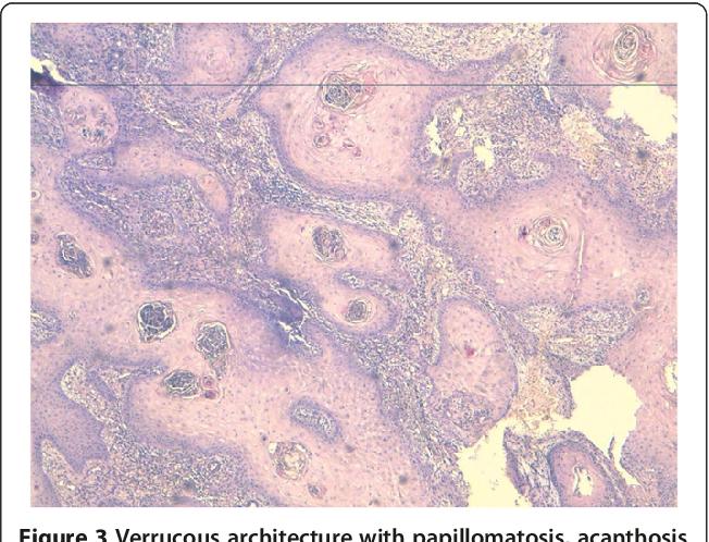 cheloo socola vaccino papilloma virus bambini