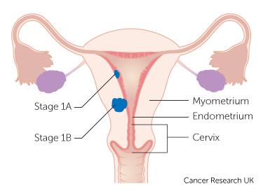 endometrial cancer curable