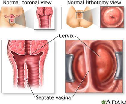 cancer que palabra es aguda grave o esdrujula papilloma non contagioso