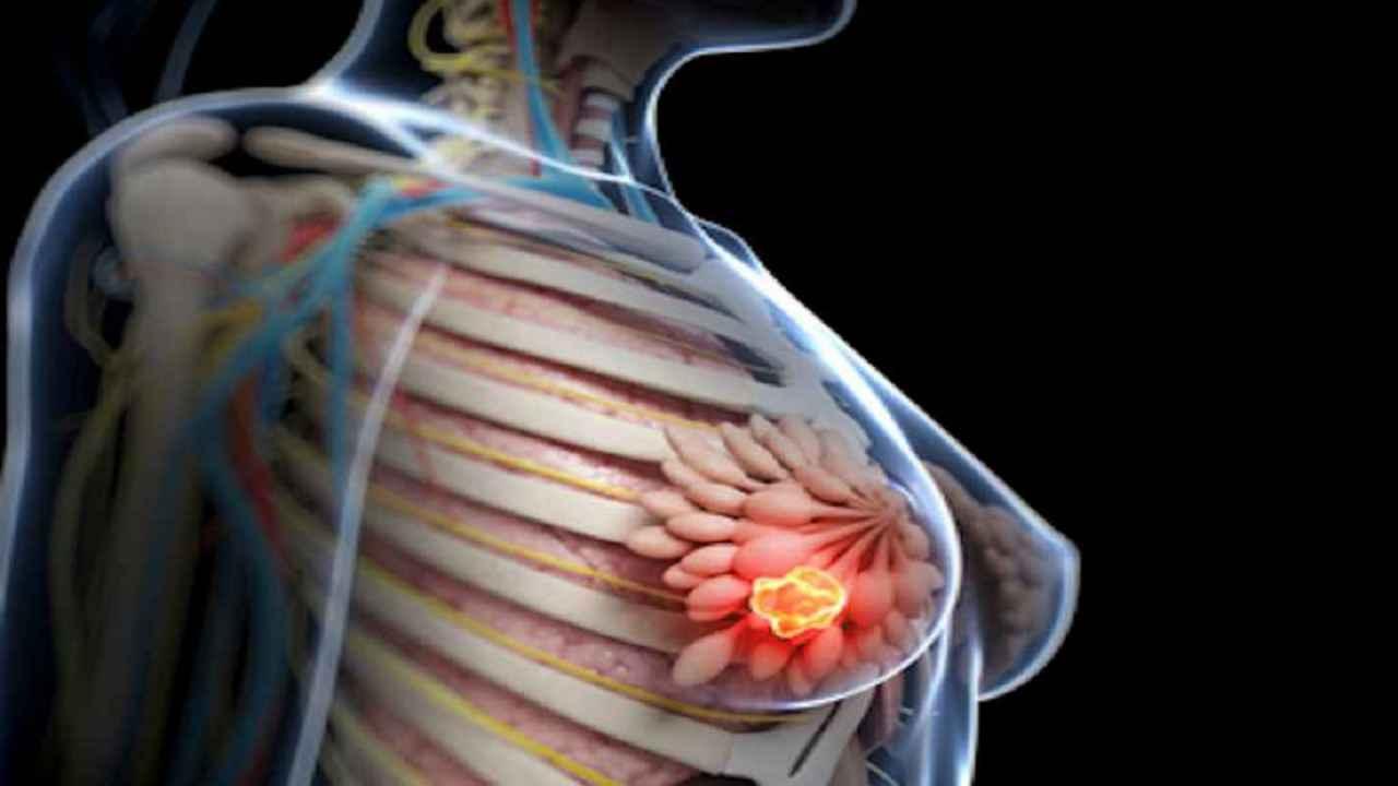 gastric cancer new treatments albendazol oxiurius