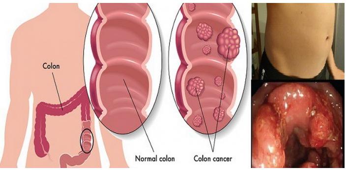 cancerul la colon virus del papiloma humano causas sintomas y tratamientos (vph)