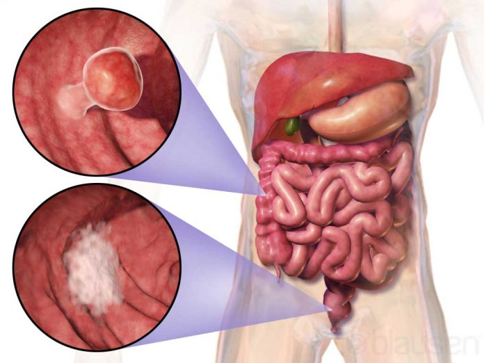 polipi la intestinul gros endocrine cancer surgery