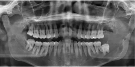 hpv virus cura papilloma removal mouth