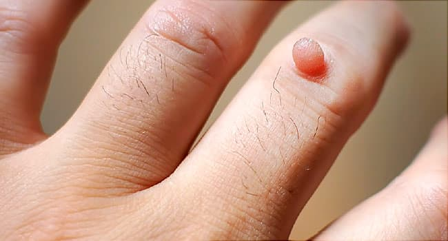 warts on hands caused by papiloma humano origen