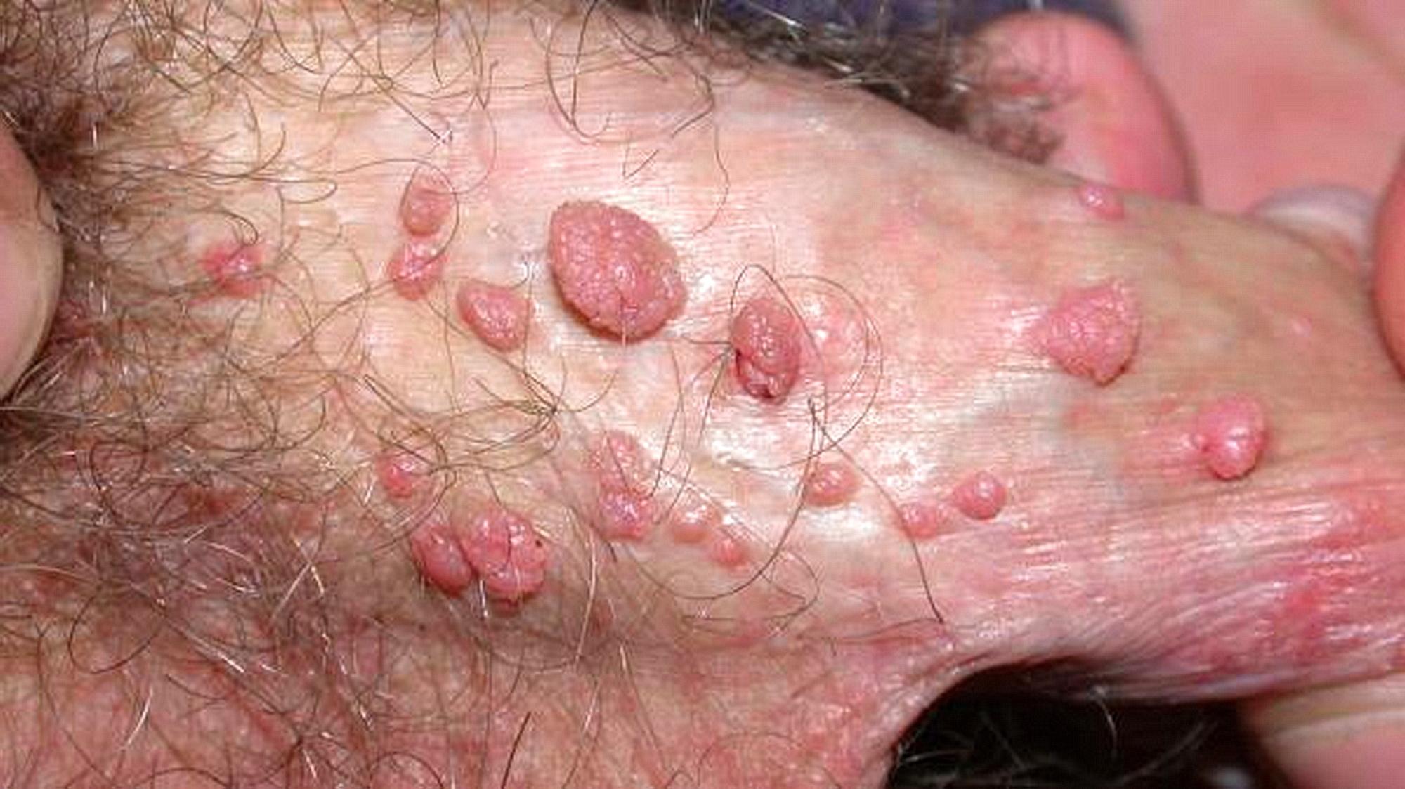 Papilloma virus uomo inguine - filme-indiene.ro