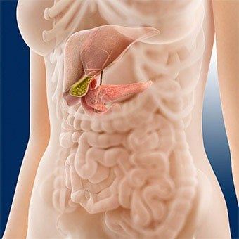 urinary bladder papilloma ct colorectal cancer genes involved