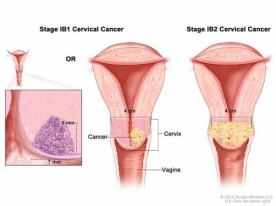 cancer col uterin virus