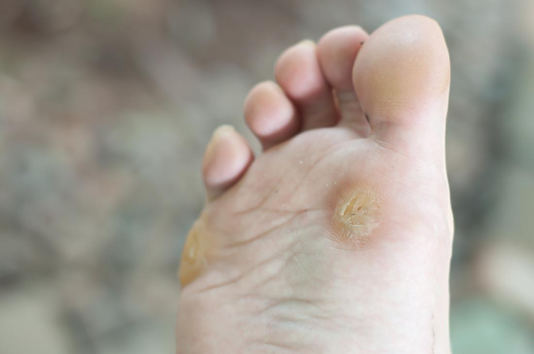 wart on foot meaning