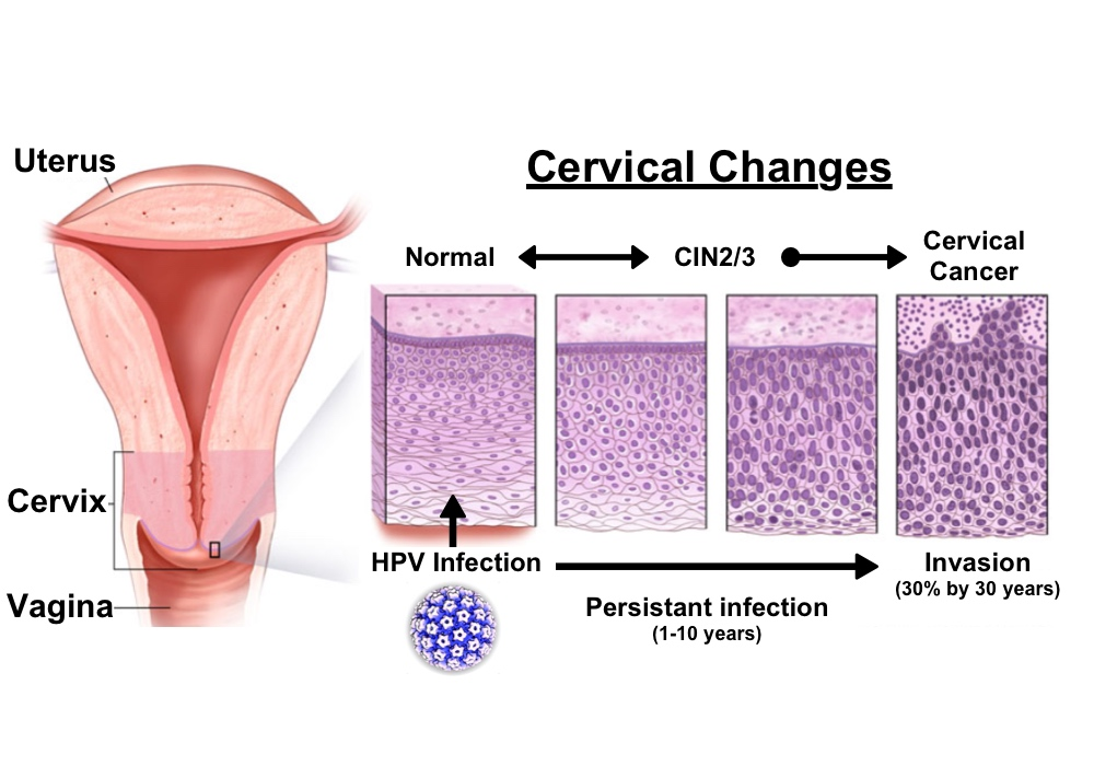 how often does hpv become cervical cancer