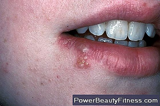 virus hpv gola sintomi