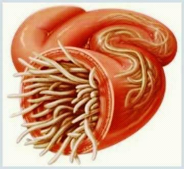 paraziti intestinali toxocara hpv wart in mouth