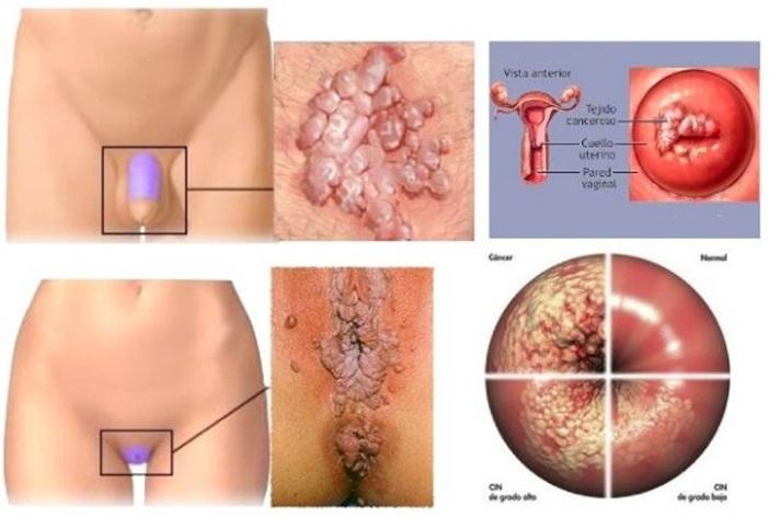 human papillomavirus infection low ricerca papilloma virus nelluomo
