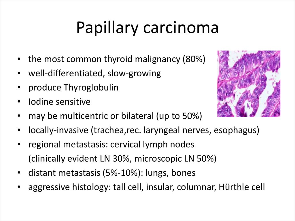 papillary thyroid cancer ppt
