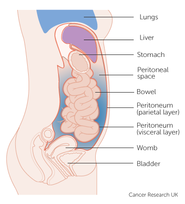 cancer in peritoneal cavity