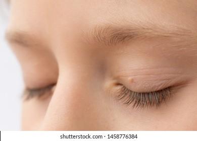 papilloma in eye treatment papiloma virus por pcr
