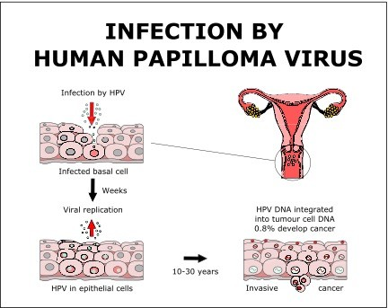 human papillomavirus infection untreated hlen ve stolici parazit