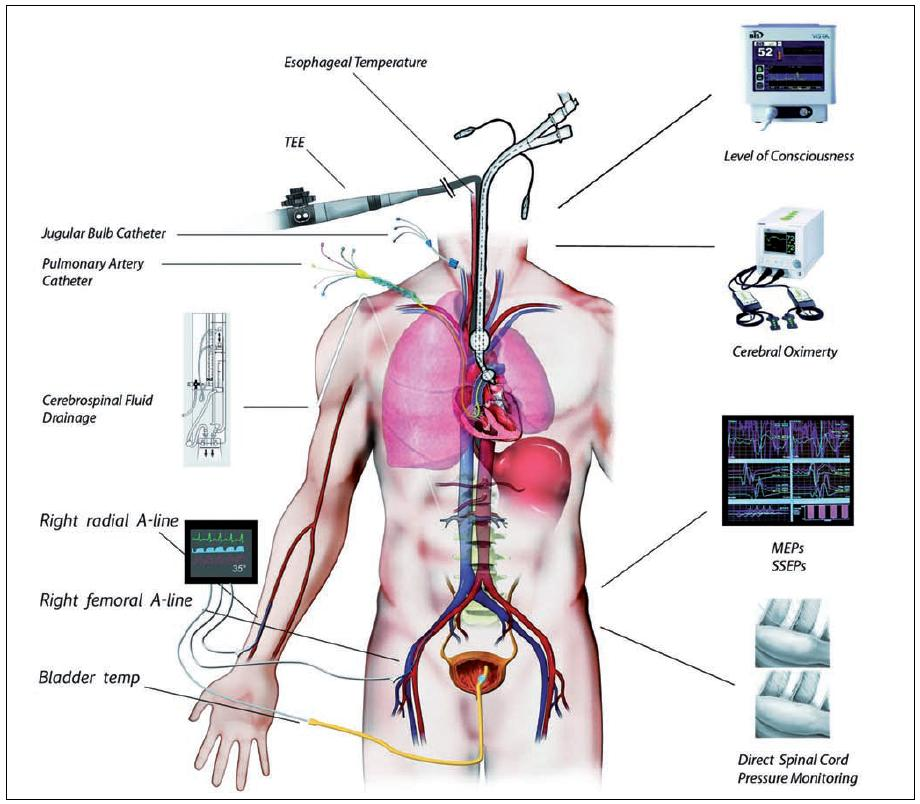 lecba hpv virus hpv oropharyngeal cancer treatment