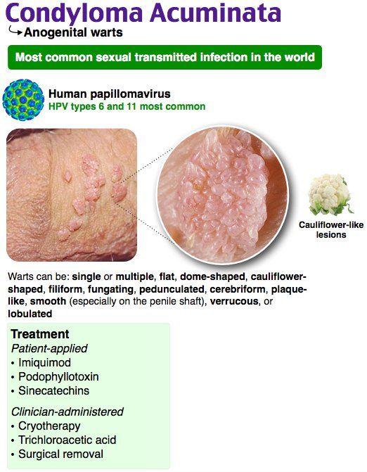 condyloma acuminata medical treatment