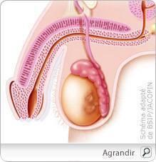 cancer testicule qui consulter nursing in cancerul esofagian