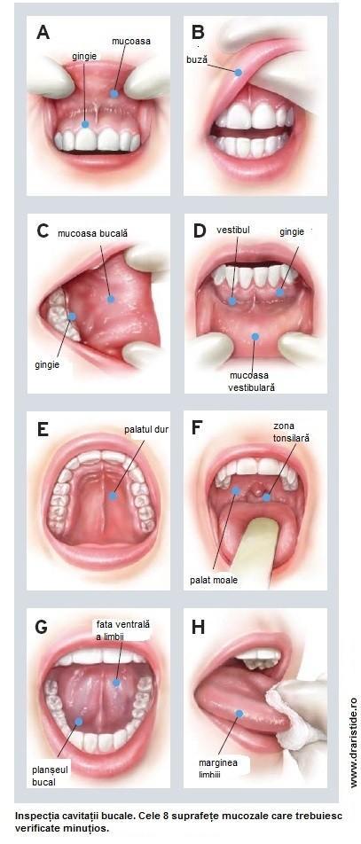 cancer in gura simptome