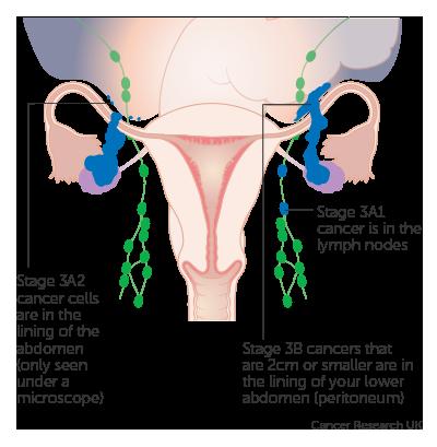 ovarian cancer figo staging 2019