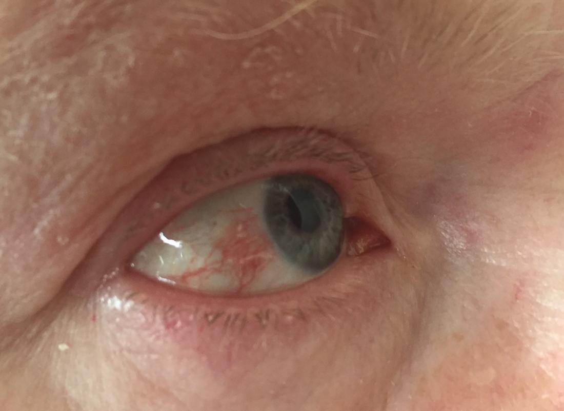 hpv eye symptoms cancer vesicula biliar ges