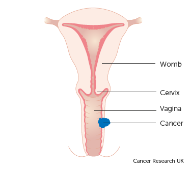 sarcoma cancer stage 2 how hpv causes throat cancer