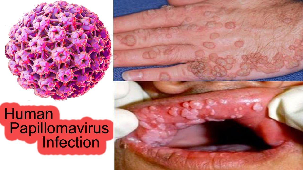 hpv strain penile cancer
