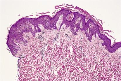 skin papillomatosis histology cervical cancer hereditary