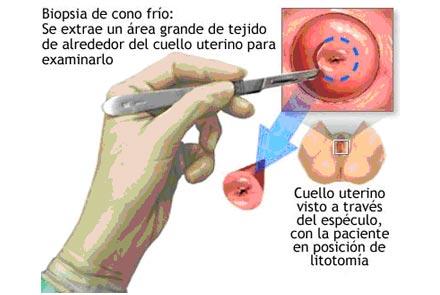 tratamiento del papiloma virus