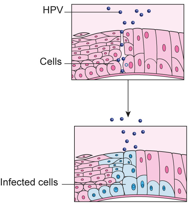 cervical cancer and the human papillomavirus papilloma cane