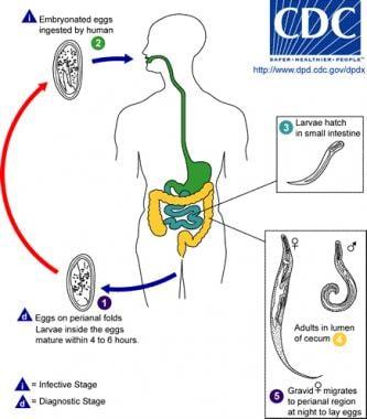 hpv virus and plantar warts enterobius vermicularis larvae morphology