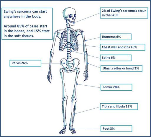 ewing sarcoma cancer cara hilangkan papiloma