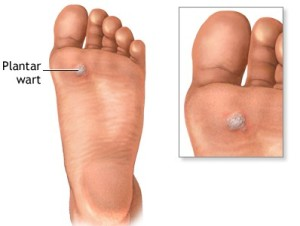 wart on the foot removal helminth infection