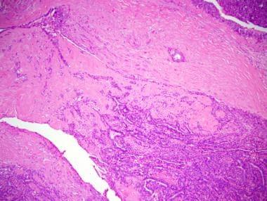 squamous papilloma vs condiloma