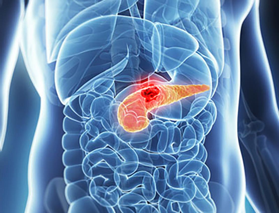 cancerul pancreatic se vindeca abdominal cancer end stage