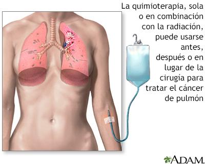hpv sintomi maschili parazit giardia intestinalis