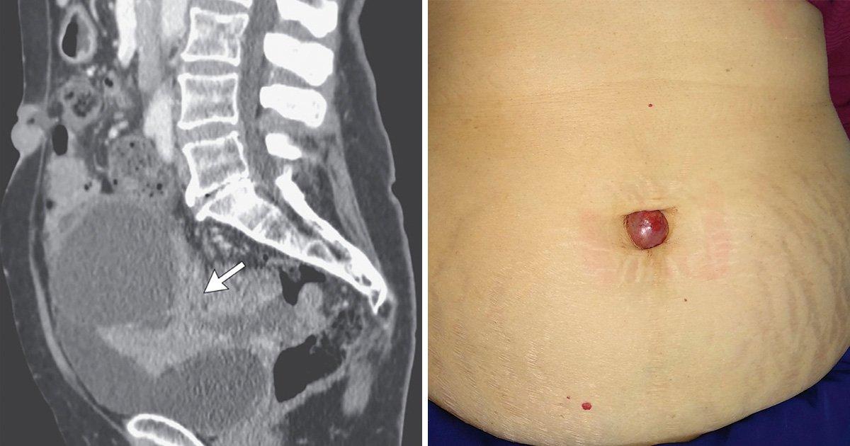 ovarian cancer abdominal nodules papillomavirus as cause