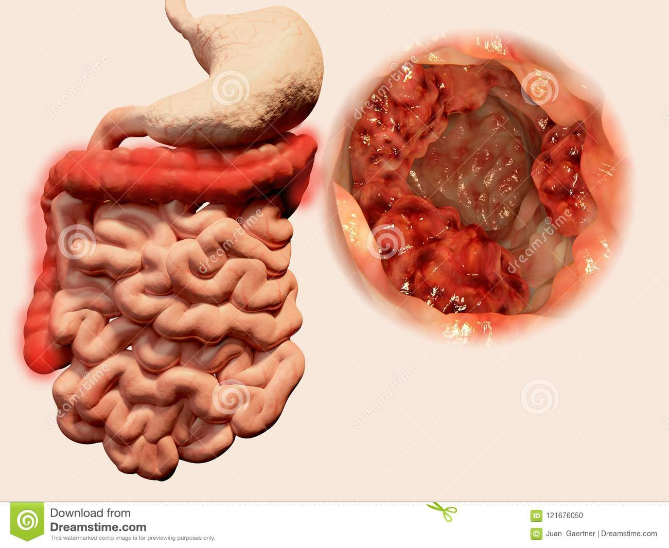 cancer malign colon hpv homme depistage