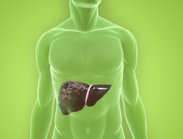 virus hpv collo dellutero papilloma of uvula icd 10