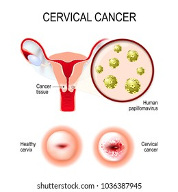 cervical cancer without bleeding liver helminth infection