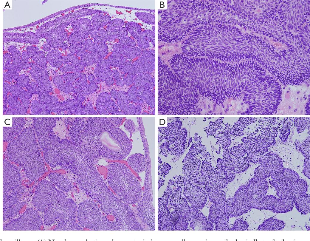 bladder inverted papilloma follow up papilloma virus labbro