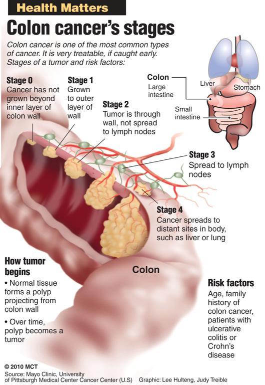 test papilloma virus e pap test
